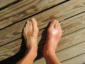Bunions and Treatment